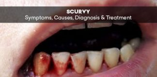Scurvy: Symptoms, Causes, Diagnosis & Treatment