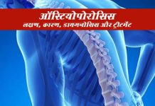 Osteoporosis In Hindi ऑस्टियोपोरोसिस: लक्षण, कारण, डायगनोसिस और उपचार