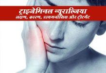 Trigeminal Neuralgia in Hindi ट्राइजेमिनल न्यूराल्जिया: लक्षण, कारण, डायगनोसिस और इलाज़