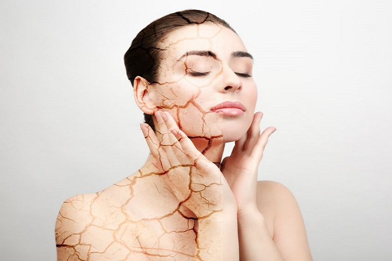 Dry-Skin-Care